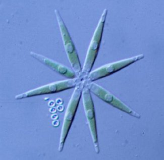 Actinastrum green algae grown on wastewater.