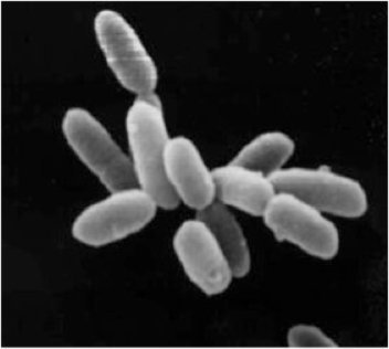 Archaebacteria (Natronomonas pharaonis): Light sensitive proteins that let negative ions through in response to yellow light (Neural code for OFF)